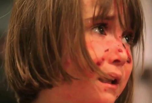 Bệnh lạ bé gái hễ ôm ấp là đau đớn - 1