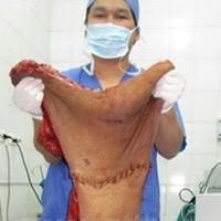 """Bóc tách thành công khối u """"quái"""" ở lưng"""