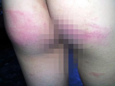 Học sinh lớp 3 bị thầy đánh tím mông - 1