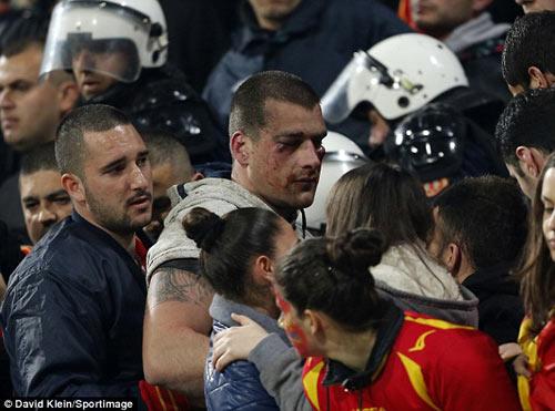 Đổ máu trước trận Montenegro – Anh - 1