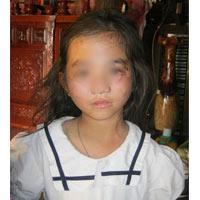Bé gái tử vong sau trận đòn tra tấn của bố