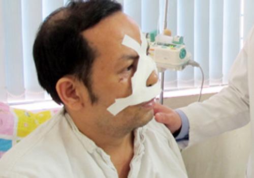 Nối thành công cho bệnh nhân bị đứt rời mũi - 1