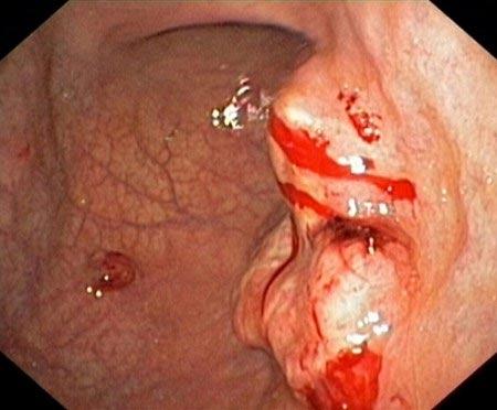 Tử vong vì biến chứng từ viêm loét dạ dày - 1