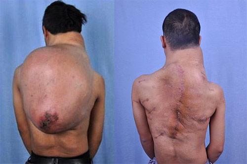 """Cảm thương """"chàng gù"""" mang khối u 13kg trên lưng - 1"""