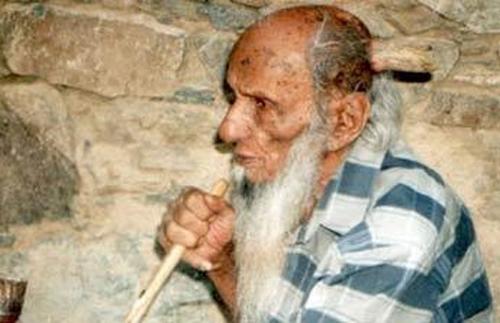 Cụ ông 102 tuổi 2 lần bị mọc sừng trên đầu - 1