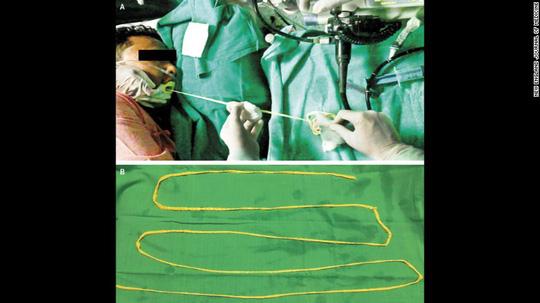 Bác sĩ kéo sán dây 1,8 m ra khỏi miệng bệnh nhân - 1