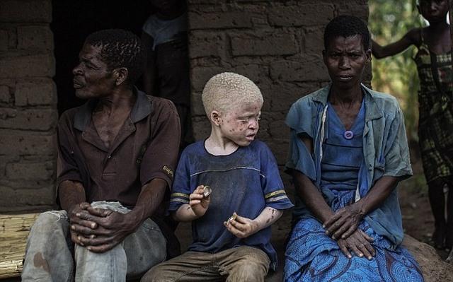 Thuê sát thủ giết người bạch tạng để chế thuốc ở Malawi - 1