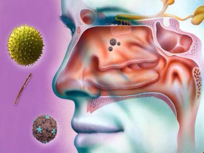 4 cách hiệu quả giúp làm dịu viêm xoang - 1