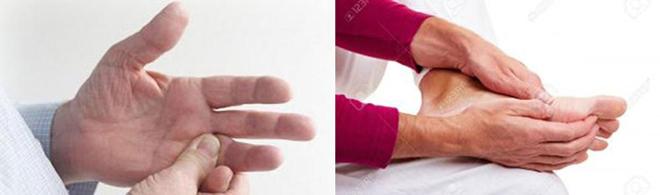 Cách giảm tê bì chân tay do đái tháo đường – tránh nguy cơ dẫn đến tàn phế - 1