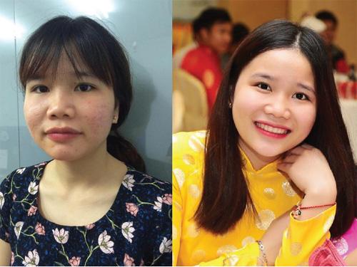 """Nữ sinh Nam Định """"vịt hóa thiên nga"""" chỉ sau 2 tháng hè - 1"""