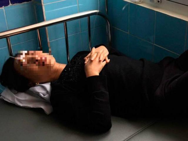 Mẹ chồng tử vong sau 2 tuần tạt axit vào mặt con dâu