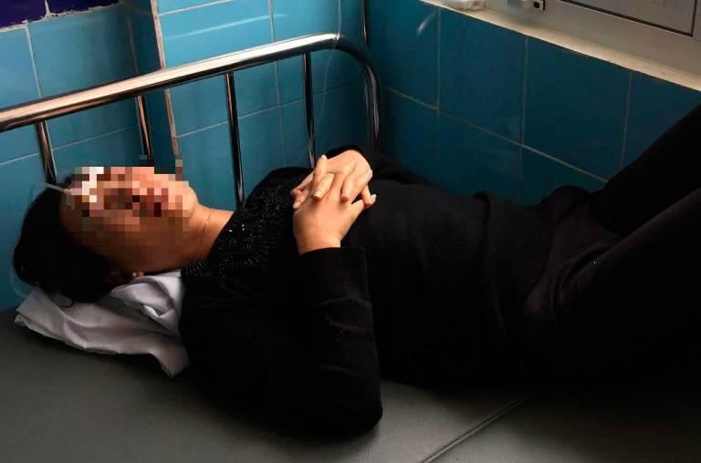 Mẹ chồng tử vong sau 2 tuần tạt axit vào mặt con dâu - 1