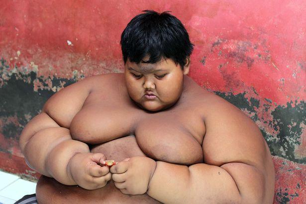 """Cậu bé béo nhất thế giới nặng gần 2 tạ """"đổi đời"""" vì giảm cân - 1"""