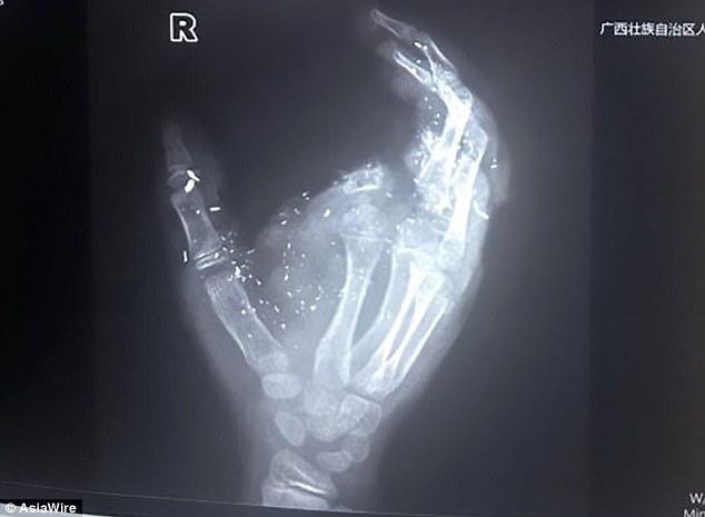 TQ: Đang sạc pin, điện thoại nổ tung như bom tiện đứt ngón tay - 1