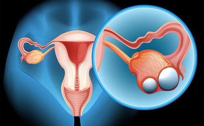 Thuốc tránh thai làm giảm nguy cơ ung thư buồng trứng - 1