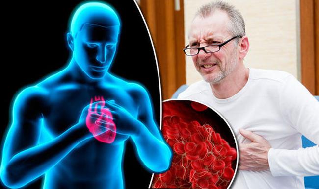 Dấu hiệu đơn giản cảnh báo cơ thể đang gặp nguy hiểm vì có cục máu đông - 1