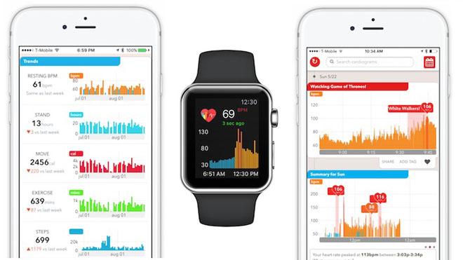 Apple Watch giúp chẩn đoán sớm bệnh tiểu đường chính xác tới 85% - 1