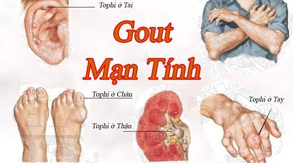 Bệnh gout là gì? Nguyên nhân và cách chữa nhanh nhất - 1