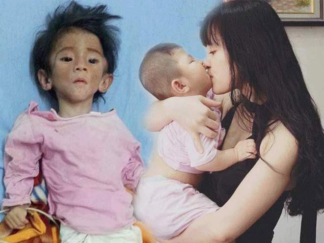 """Cô gái nhận nuôi em bé suy dinh dưỡng: """"Lấy chồng vẫn đưa con theo"""" - 1"""