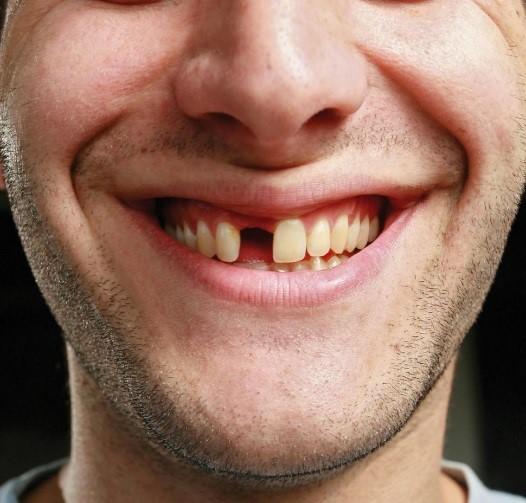 Hôi miệng, viêm lợi, răng lung lay và rụng liên tục, tôi đã cải thiện rõ nhờ cách đơn giản này - 1