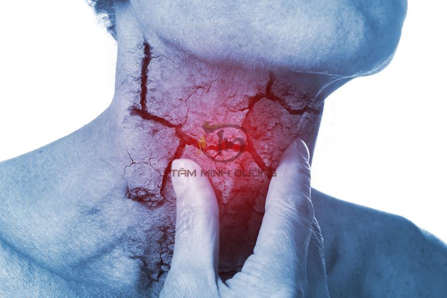 Nguyên nhân, triệu chứng, cách chữa viêm họng hạt hiệu quả vượt trội - 1