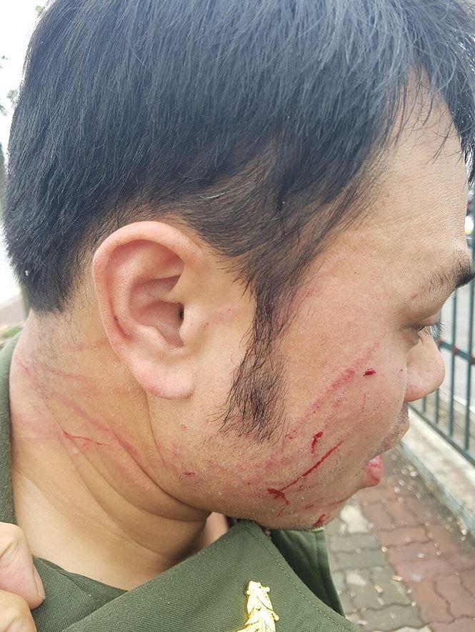 Đề nghị khởi tố 'cò' taxi đánh nhân viên sân bay Nội Bài gãy răng - 1