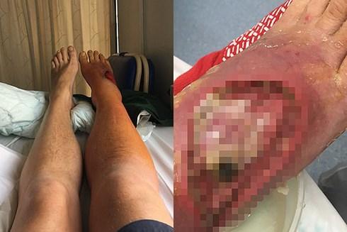 Rùng mình, bác sĩ thả 400 con giòi vào chân để ăn thịt chữa bệnh - 1
