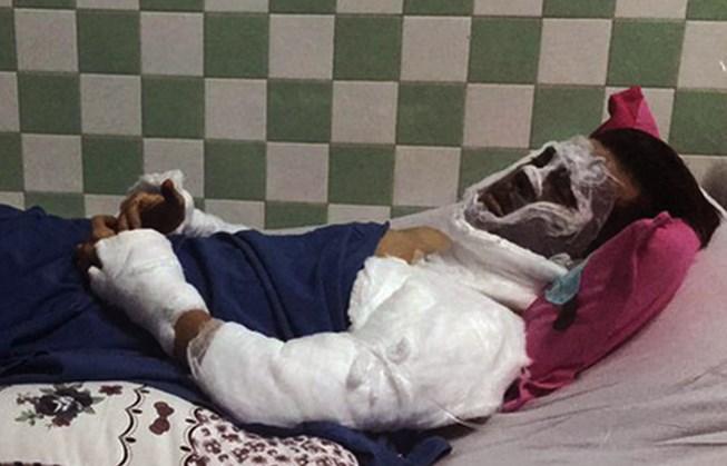 Việt kiều bị tạt a xít ở Quảng Ngãi bị cháy giác mạc - 1