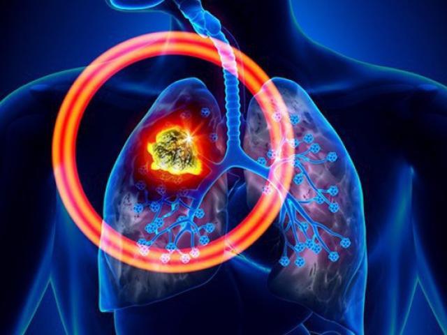 Làm thế nào để ung thư phổi, sát thủ giết gần 100 nghìn người Việt mỗi năm không tìm đến bạn?