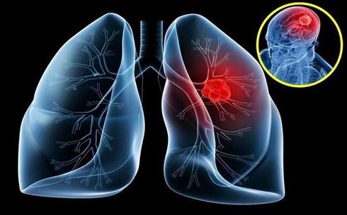 Tưởng cảm lạnh hóa ra ung thư phổi - 1