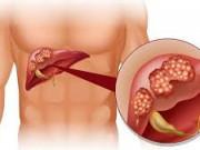 Ung thư gan: Hệ quả tất yếu vì coi thường gan nhiễm mỡ!