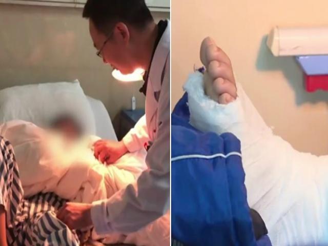 Trung Quốc: Không làm bài tập về nhà đúng giờ, cậu bé bị cha đánh gãy chân