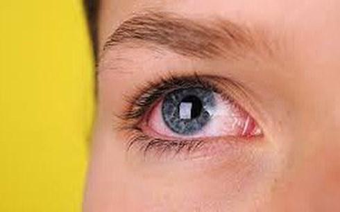 Bệnh gây mù lòa hàng đầu thế giới: Cứ 2 giây có 1 người không nhìn thấy ánh sáng - 1
