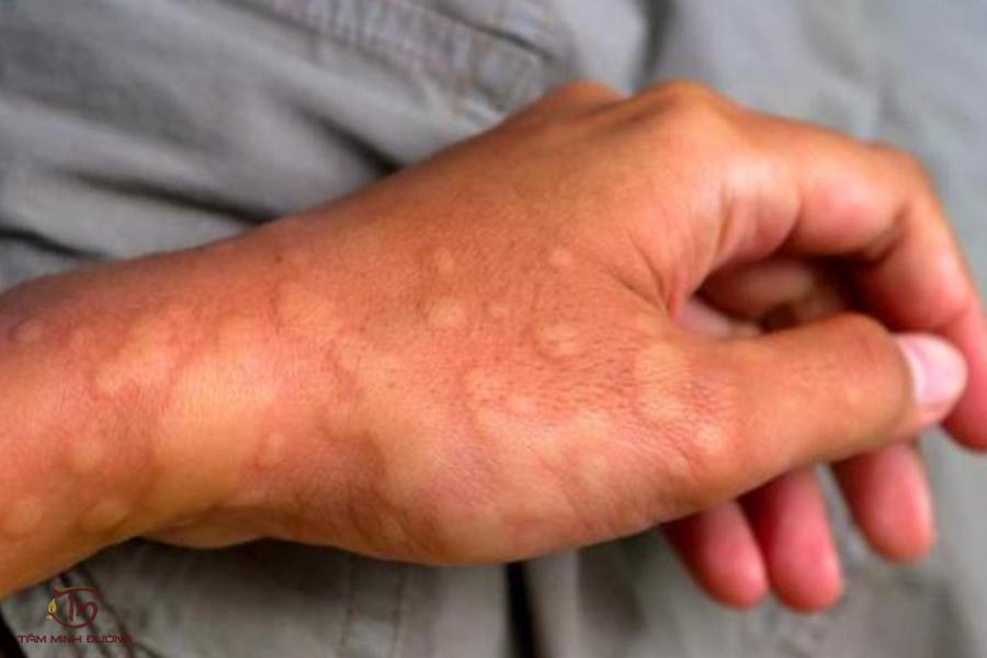 Bệnh nổi mề đay: Nguyên nhân, dấu hiệu và cách điều trị đánh bay ngứa - 1