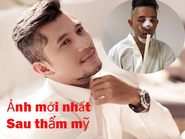 """Lương Bằng Quang sau khi sửa mặt: """"Giờ tôi giống mấy anh bán dầu mỏ, kim cương"""""""