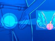 """Trĩ có thể gây Ung Thư trực tràng, nhưng cách đơn giản này giúp bạn """"đánh bay"""" bệnh trĩ"""