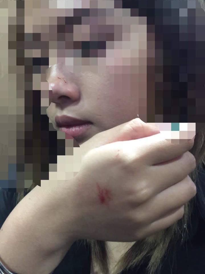 Người đàn ông cưỡng hôn nữ sinh trong thang máy lại vắng mặt tại buổi xin lỗi - 1
