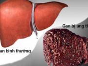 Coi thường gan nhiễm mỡ: Đối mặt với ung thư gan và cái chết