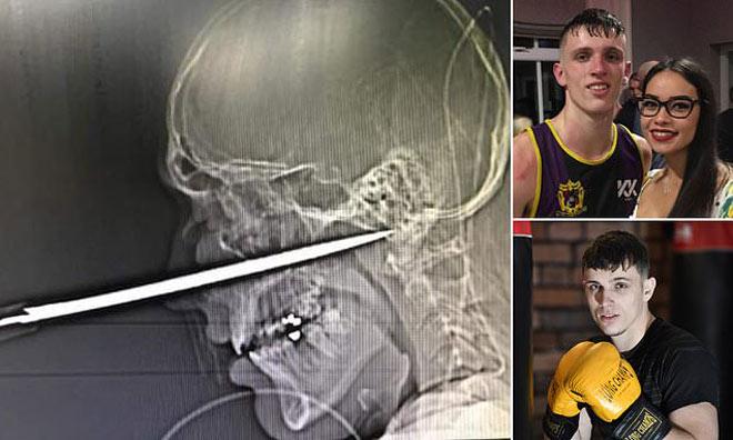Rúng động boxing: Võ sĩ đi chơi với bạn gái bị côn đồ đâm dao vào mặt - 1