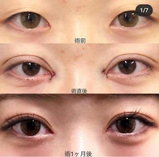 """Nhật Bản, Hàn Quốc đi đầu phẫu thuật thẩm mỹ mắt """"đường chỉ"""" thành """"bồ câu"""" - 1"""