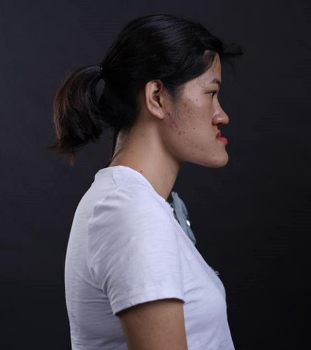 """Cô gái Hà Nội tự nhận có gương mặt """"quỷ"""" biến hóa thành hot girl xinh ngỡ ngàng - 1"""
