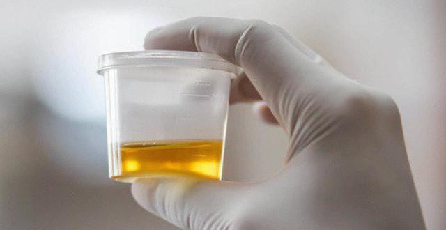 4 dấu hiệu cảnh báo bệnh sau khi uống nước, nếu có cần khám gấp - 1