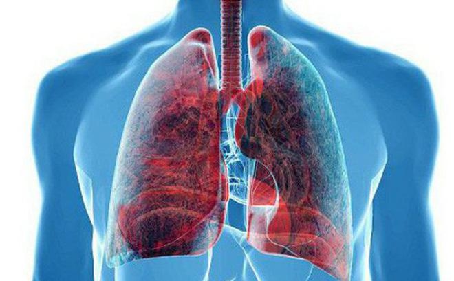 """80% người Việt mắc ung thư phổi vì những thói quen """"tệ hại"""" này - 1"""