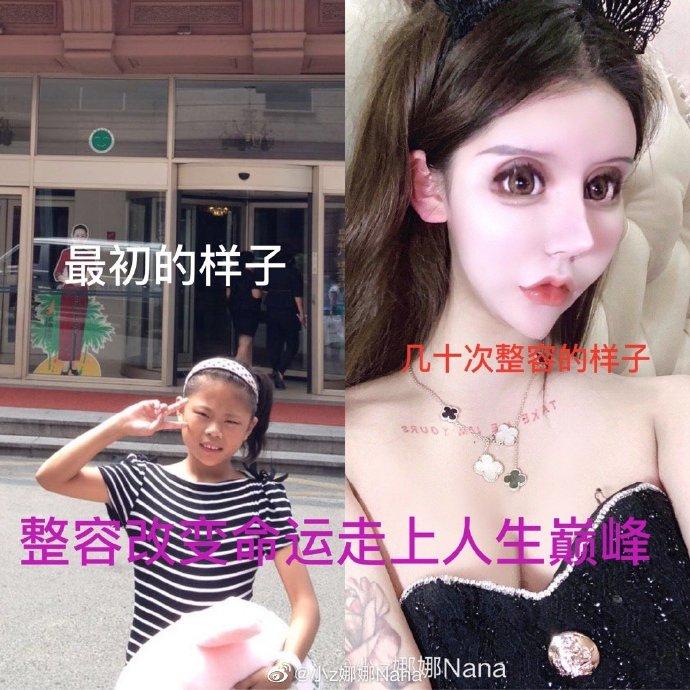 """Thêm 1 thảm họa """"mặt rắn"""" ở Trung Quốc, 13 tuổi phẫu thuật 60 lần suốt 3 năm - 1"""
