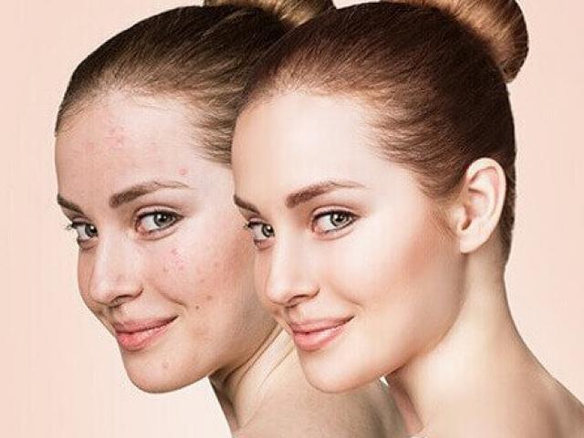 Nếu có làn da khô, tuyệt đối tránh 5 thành phần dễ có trong sản phẩm làm đẹp
