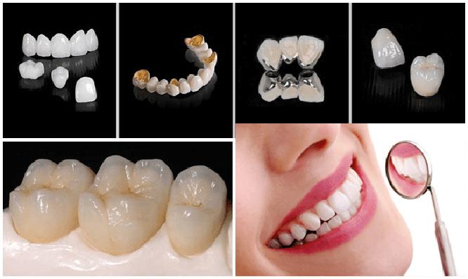 Bọc răng sứ là gì ? Bọc răng sứ có tốt không và đẹp vĩnh viễn như quảng cáo? - 2