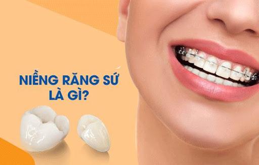 Niềng răng là gì? Niềng răng có đau không và những lưu ý bạn nên biết - 6