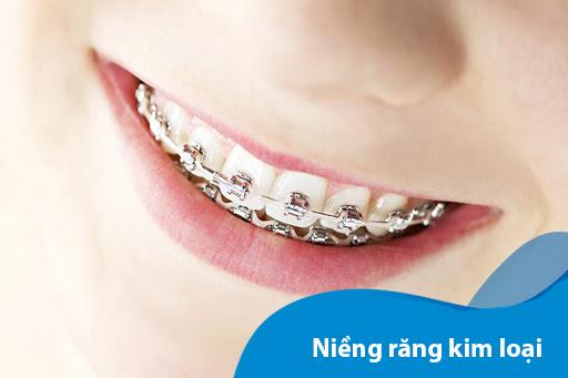 Niềng răng là gì? Niềng răng có đau không và những lưu ý bạn nên biết - 5