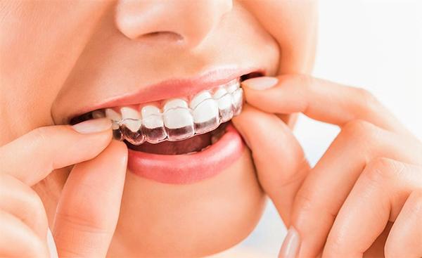 Niềng răng là gì? Niềng răng có đau không và những lưu ý bạn nên biết - 8