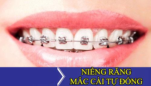 Niềng răng là gì? Niềng răng có đau không và những lưu ý bạn nên biết - 7